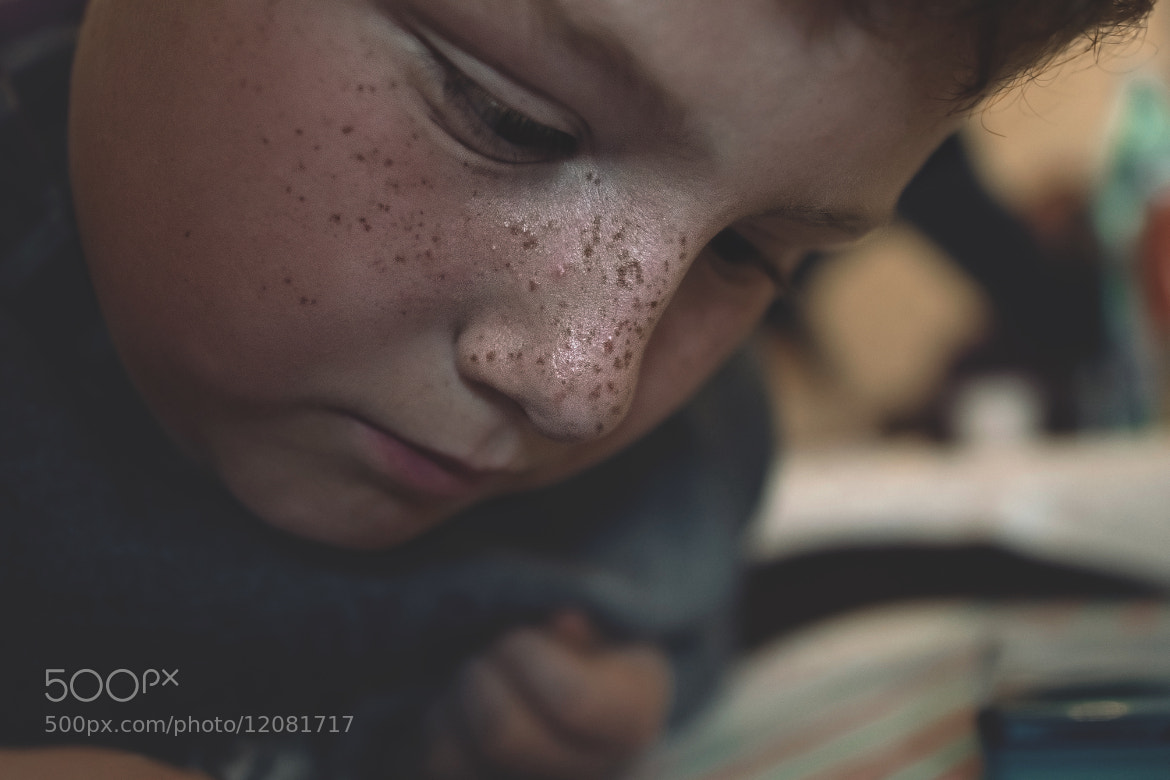 Photograph ORDINARY FRECKLES by Floriano Macchione on 500px