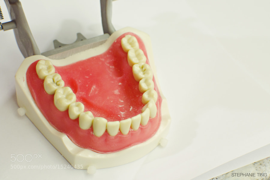 Dental School Class I Amalgam Prep