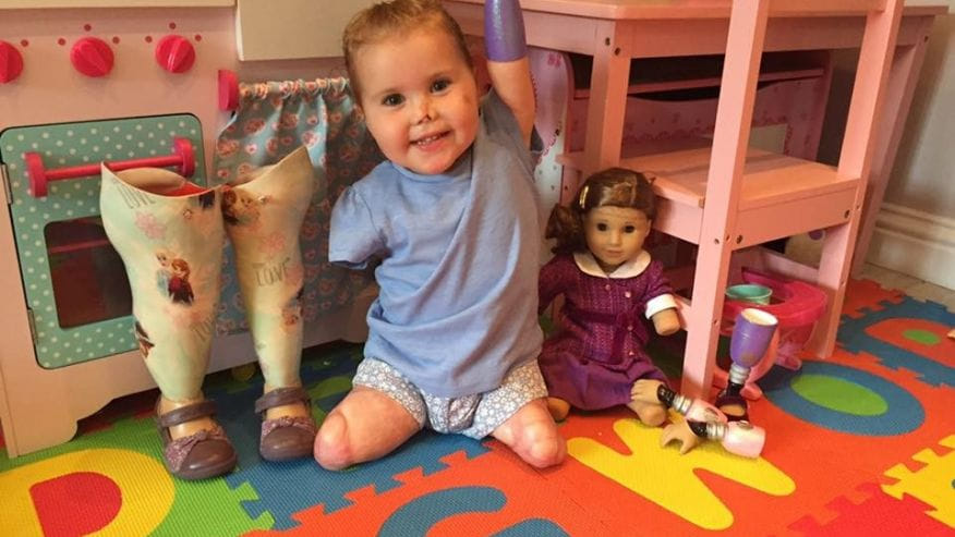 Quadruple-amputee toddler receives look-alike doll- after getting it she was so thrilled