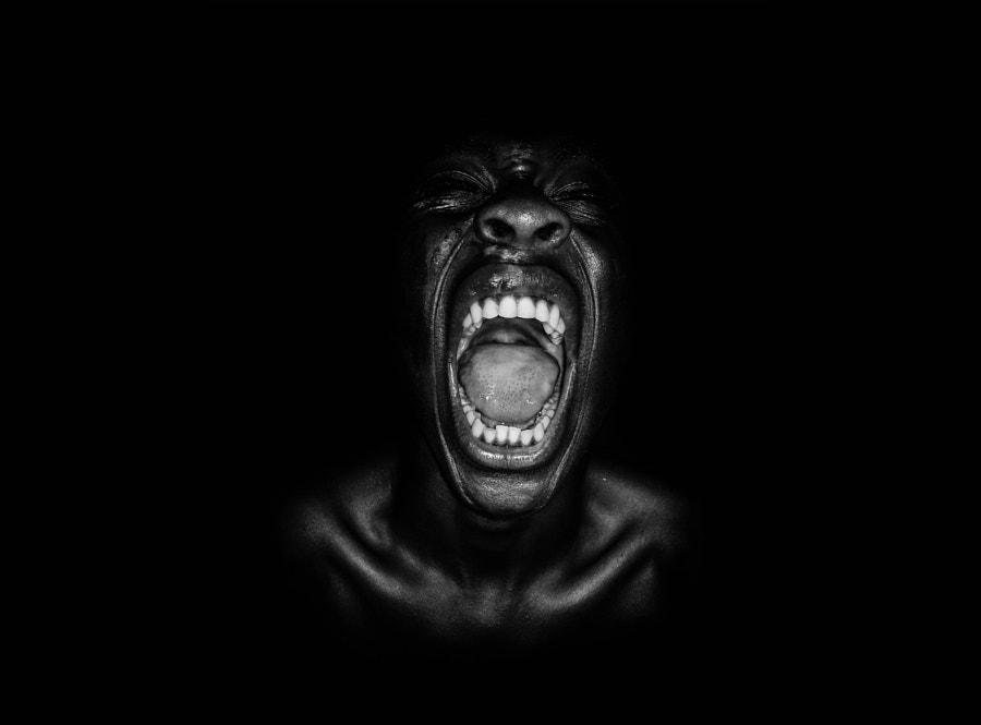 Home-made Scars by Adeolu Osibodu on 500px.com