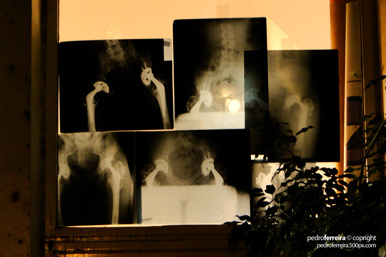 Photograph X-Ray window by Pedro Ferreira on 500px