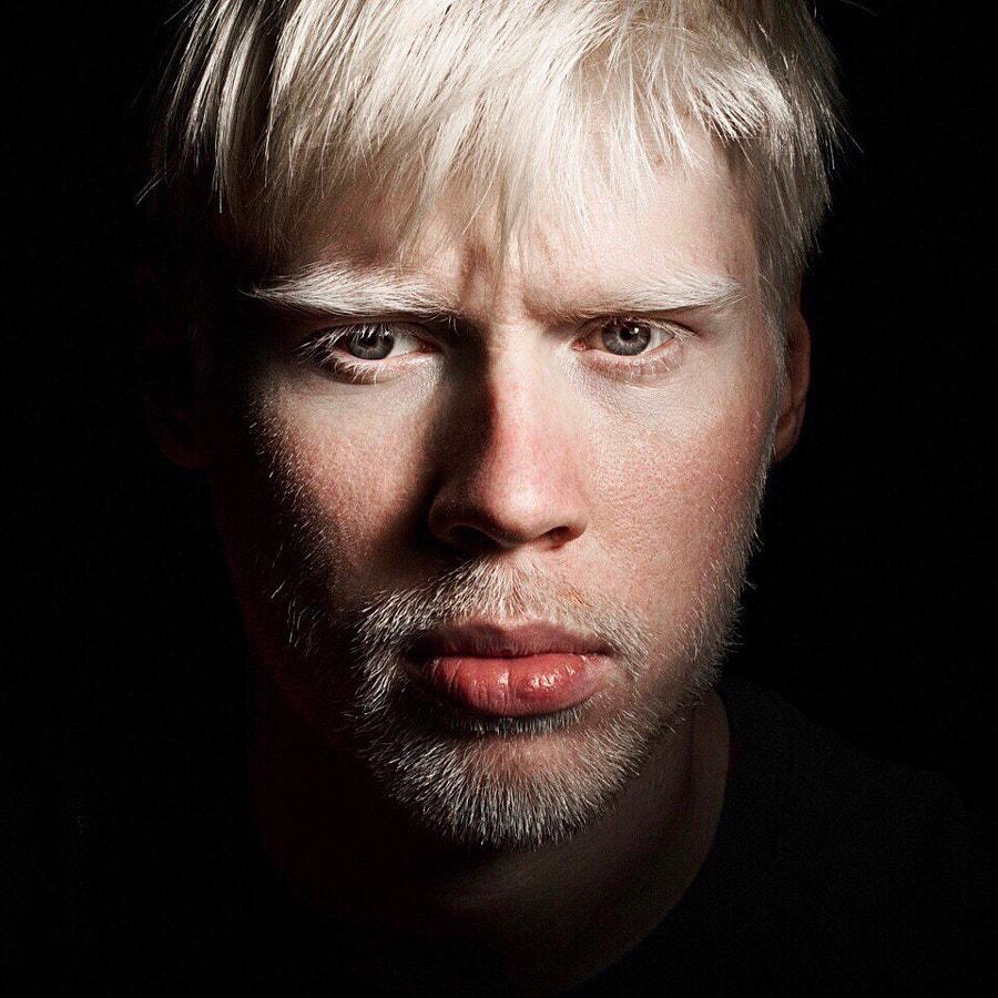 Albino by Kirill Golovan on 500px.com