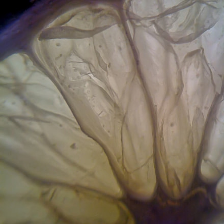 Slice, Apple iPhone 3G