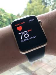 Detecting hypertension and sleep by apple watch