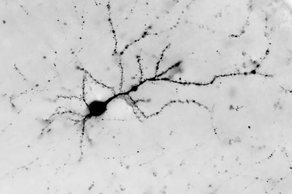 Photograph Cortical Neuron by Bryan Jones on 500px