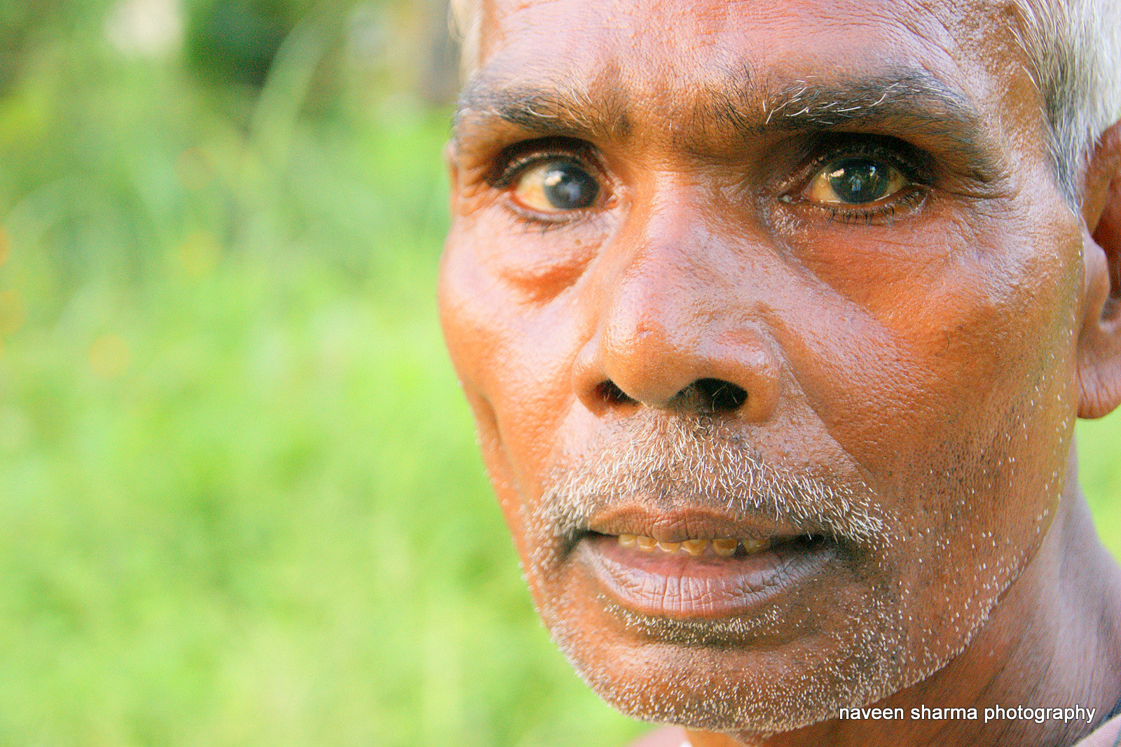 Photograph Aged man having cataract in left eye by naveen sharma on 500px