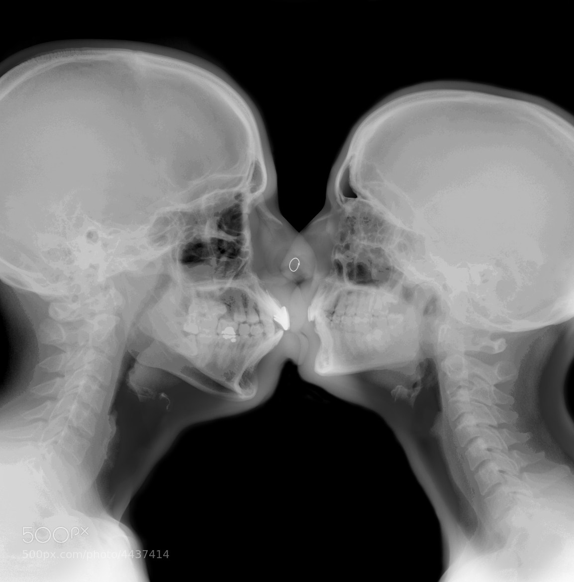 Photograph x ray kiss by Guy Viner on 500px